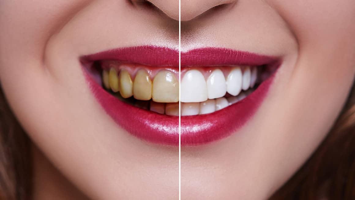 Diş beyazlatmak kalıcımıdır ve nasıl yapılır
