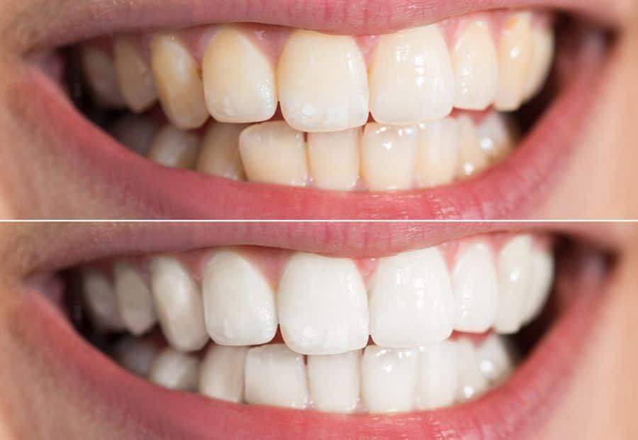 Diş beyazlatmak kalıcımıdır